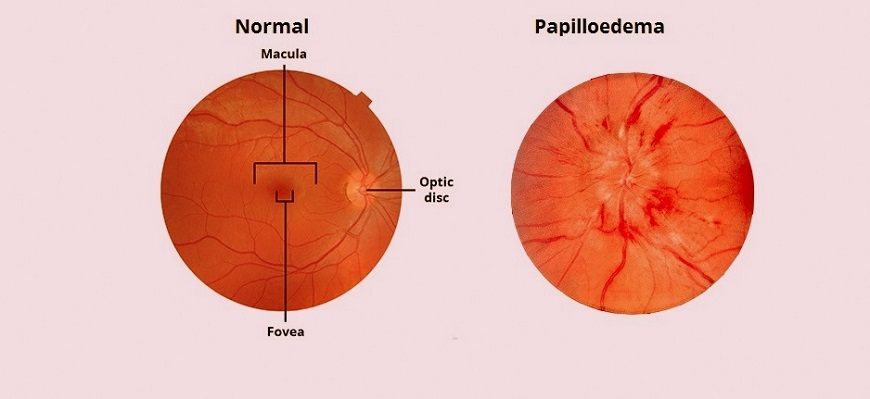 papilloedema eye treatment clinic in chandan nagar pune