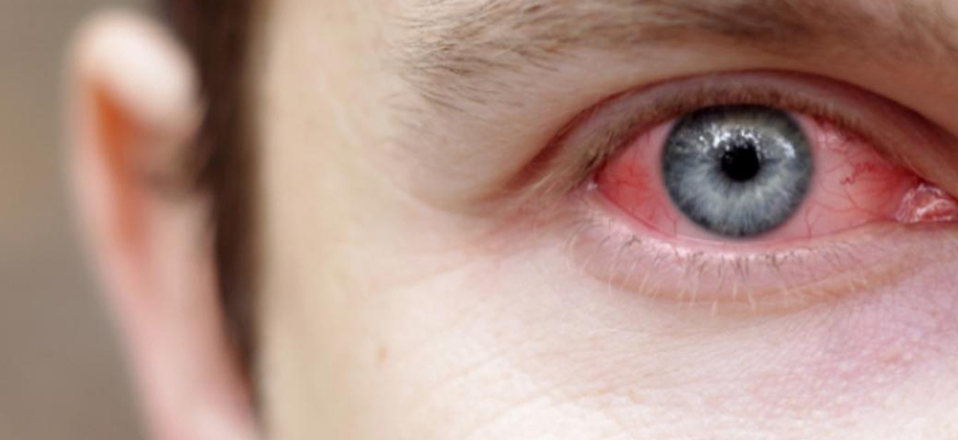 uveitis eye treatment clinic in pune