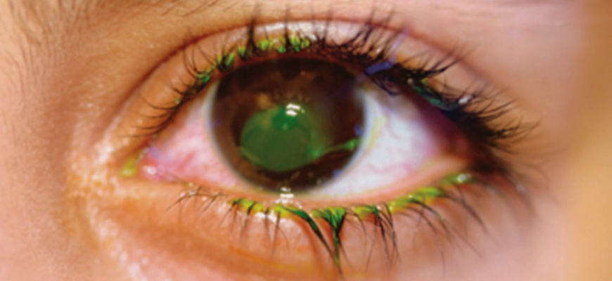 Cornea eye treatment in pune