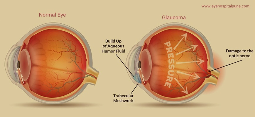 Glaucoma Eye treatment in chandan nagar pune