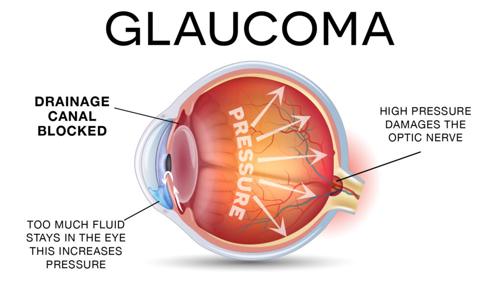 Glaucoma treatment in pune